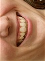 D is for dental.